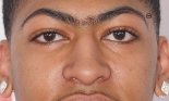 anthony-davis-eyebrow-trademark
